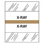 "Tabbies ""X Ray"" Medical Chart Tabs, Brown"