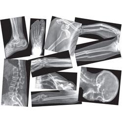 Roylco Broken Bones X-Rays, 15pcs, Translucent